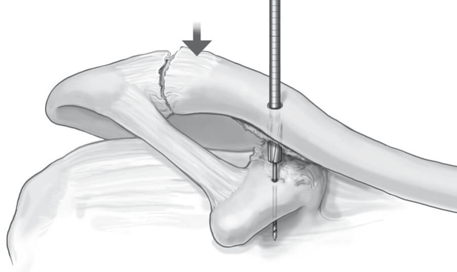 Double Endobutton Technique for Repair of Complete Acromioclavicular Joint Dislocations Figure 1