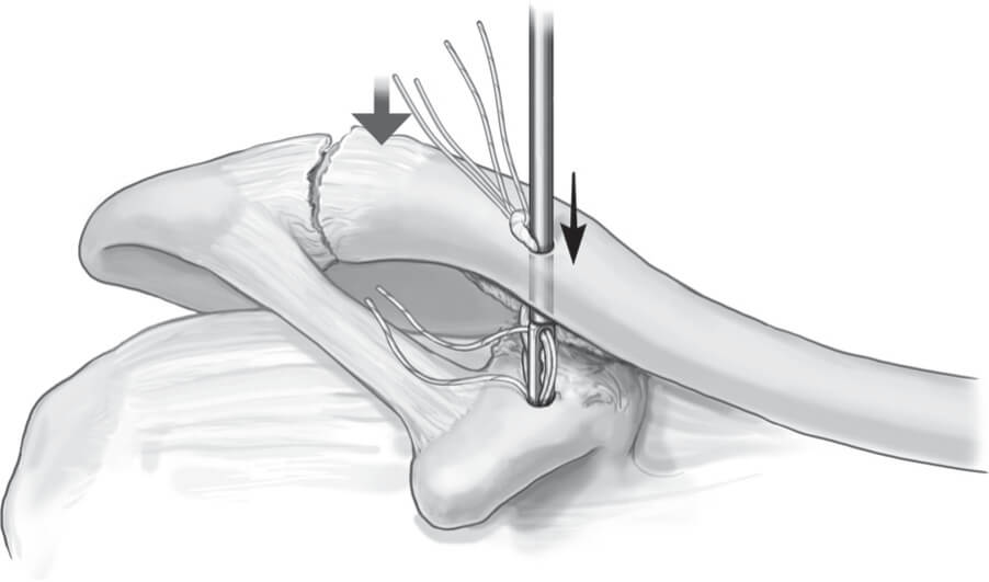 Double Endobutton Technique for Repair of Complete Acromioclavicular Joint Dislocations Figure 3
