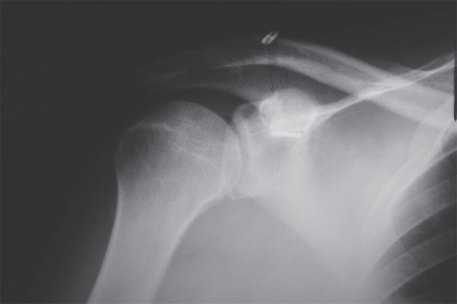 Double Endobutton Technique for Repair of Complete Acromioclavicular Joint Dislocations Figure 8