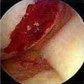 Operation to Stimulate Cartilage Growth (Area Clots)